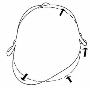 plagiocefalea deformidades en la cabeza del bebe